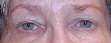 Patient after a unilateral ptosis repair at Eyelid & Facial Aesthetics in Charlottesville.