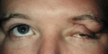 Patient with Traumatic Ptosis who saw Dr. Kaltreider in Charlottesville.