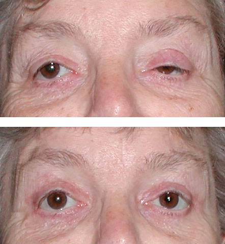 Myogenic ptosis repair - before and after surgery