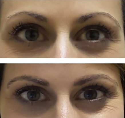 Eyebrow microblading - before and after photos