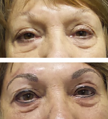 Microblading thickens sparse eyebrows