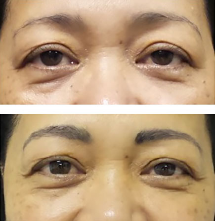 Microblading thickens these permanent eyebrows