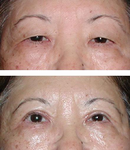 Upper eyelid blepharoplasty yields dramatic improvements to vision