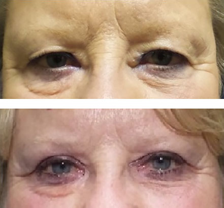 Blepharoplasty improves appearance - before after picture