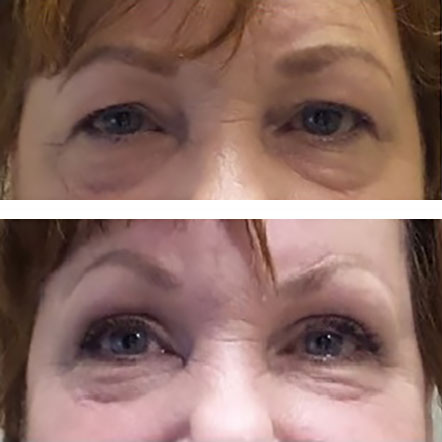 eyelids open easily after blepharoplasty and direct brow lift